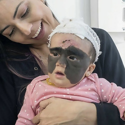 """The mother of the girl with the """"Batman mask"""" showed the first result of the operation (@luna.love.hope/Newsflash)"""